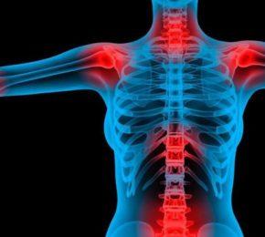 Fibromialgia: consigli nutrizionali nel dolore cronico